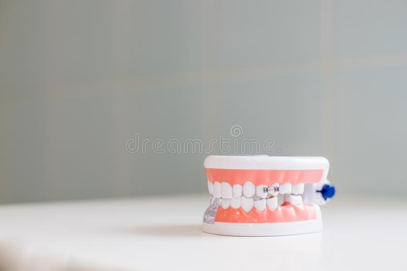 Dental hygienist checkup concept.Dental tooth dentistry student learning teaching model showing teeth, roots, gums, gum royalty free stock photos