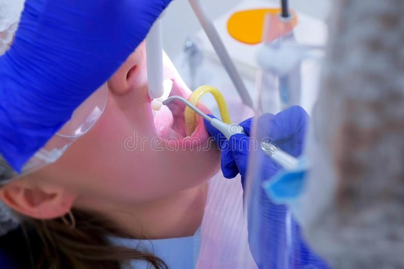 Dental hygienist makes ultrasonic cleaning dry teeth to woman, closeup view. Dental hygienist makes ultrasonic cleaning teeth to women in dentistry, closeup royalty free stock photography