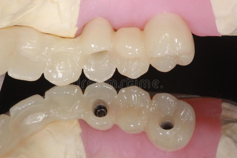 A dental implant bridge with reflection of occlusal hole stock photography