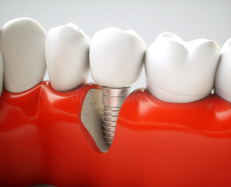 Dental implant - 3d rendering royalty free stock photo