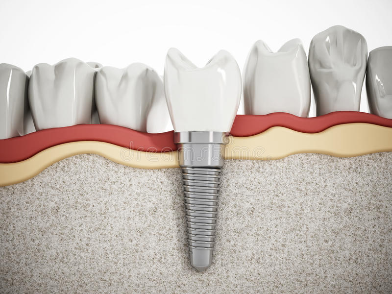 Dental implant detail vector illustration