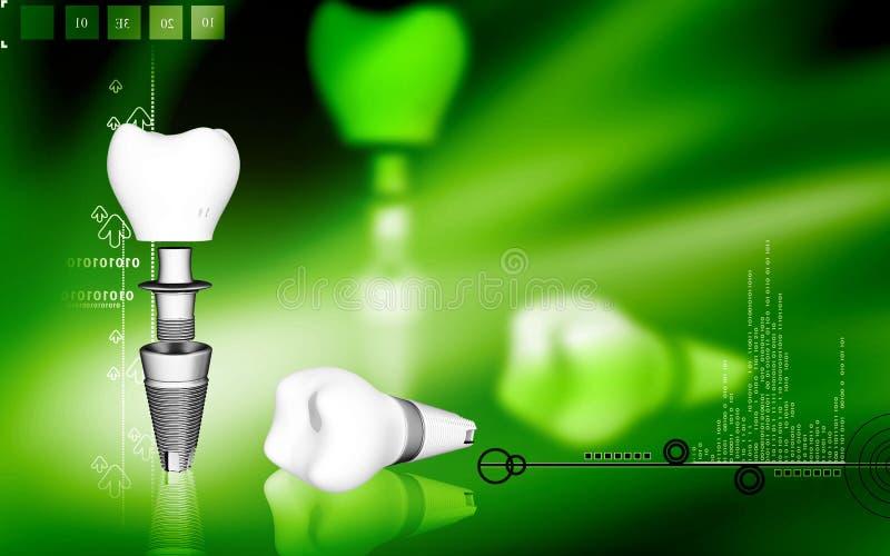 Dental implant. Digital illustration Dental implant in colour background vector illustration