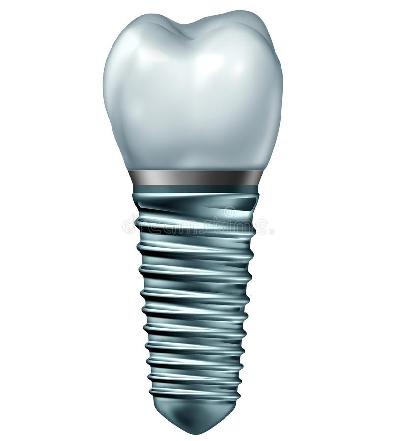 Dental Implant. Or endosseous tooth prosthetic concept with an orthodontic crown abutement and metal isolated on a white background as an orthodontist dentistry stock illustration