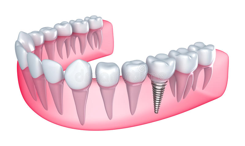 Dental implant in the gum royalty free illustration