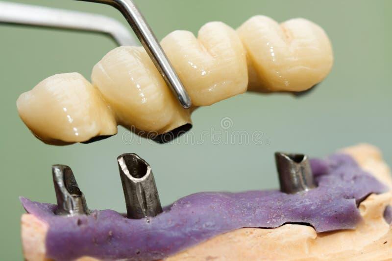 Dental implant head and bridge. A dentist / dental technician placing the fixed partial denture ( the dental bridge) on the implants stock photo