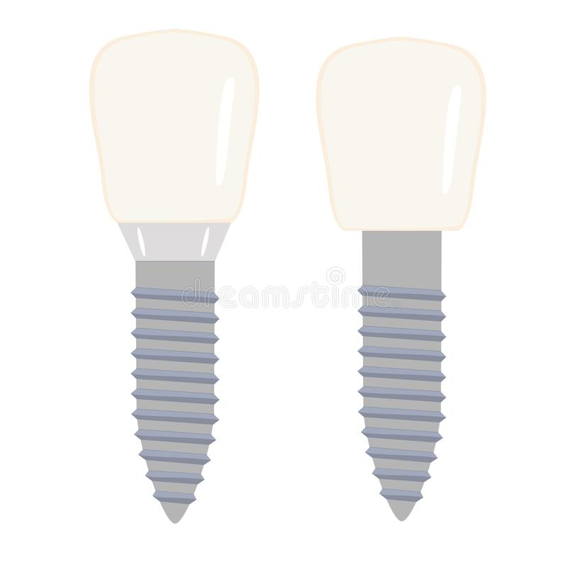 Dental implant. Isolated stock vector image on white background. royalty free stock photos