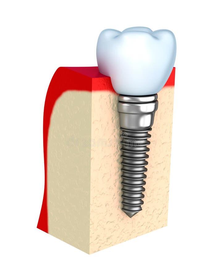 Dental implant in jaw bone. Over white stock illustration
