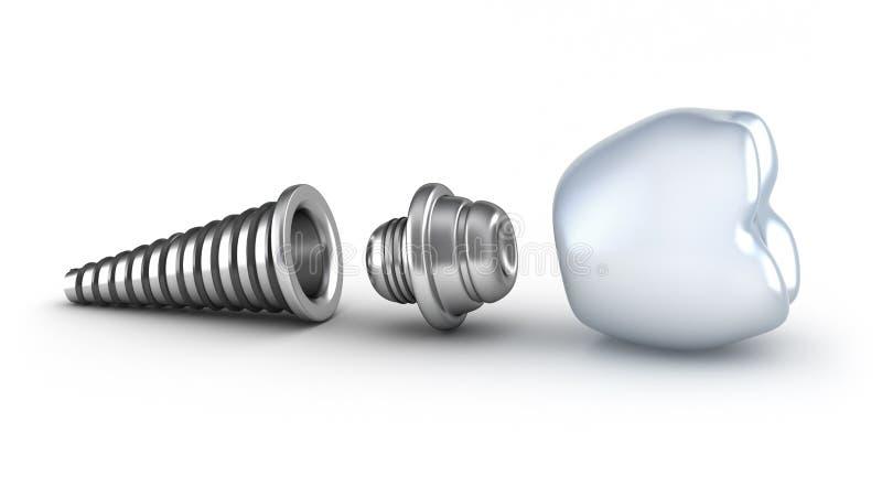 Dental implant lying on its side. Isolated on white stock illustration