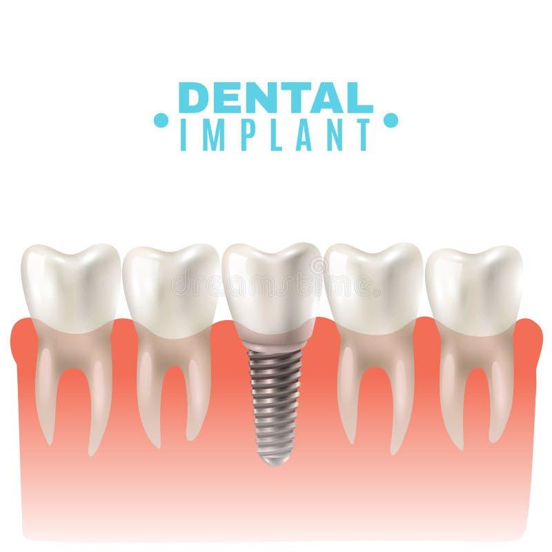 Dental Implant Model Side View Poster vector illustration