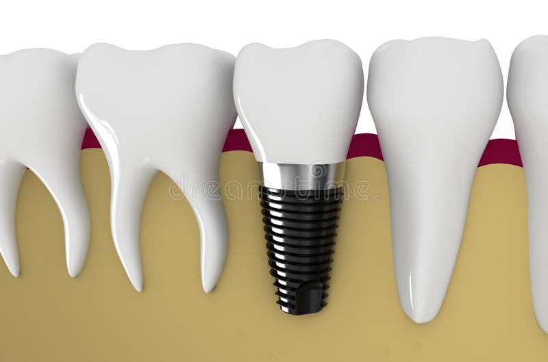 Dental implant. Modern technology of dentistry - dental implant technology royalty free illustration