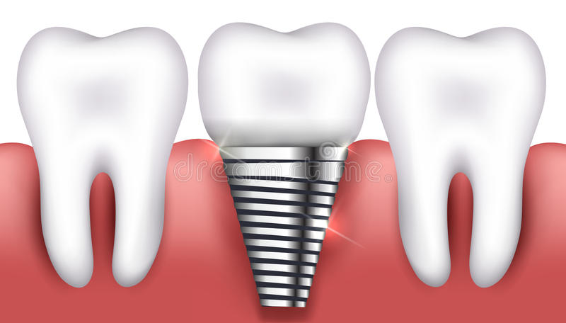 Dental implant and normal teeth royalty free illustration