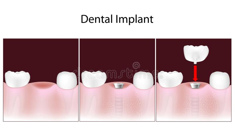 Dental implant procedure stock illustration