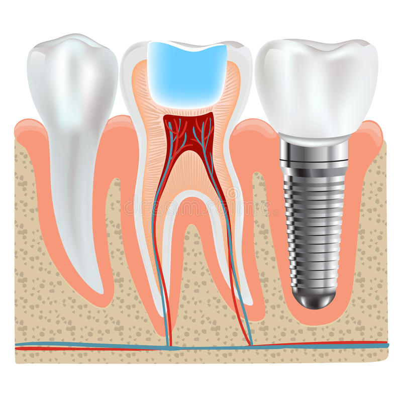 Dental Implant And Real Tooth Anatomy Closeup Stock Vector
