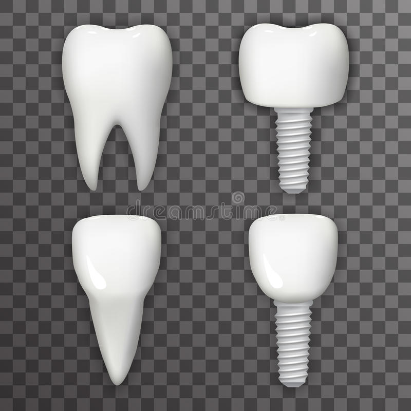 Dental Implant Realistic 3d Tooth Poster Transperent Stomatology Icon Template Background Mock Up Design Vector royalty free illustration