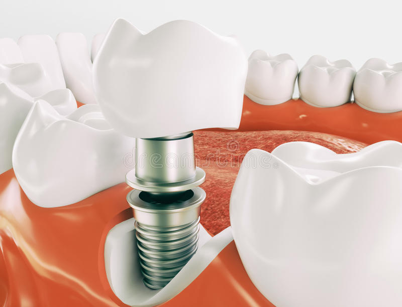 Dental implant - Series 2 of 3 - 3d rendering stock image