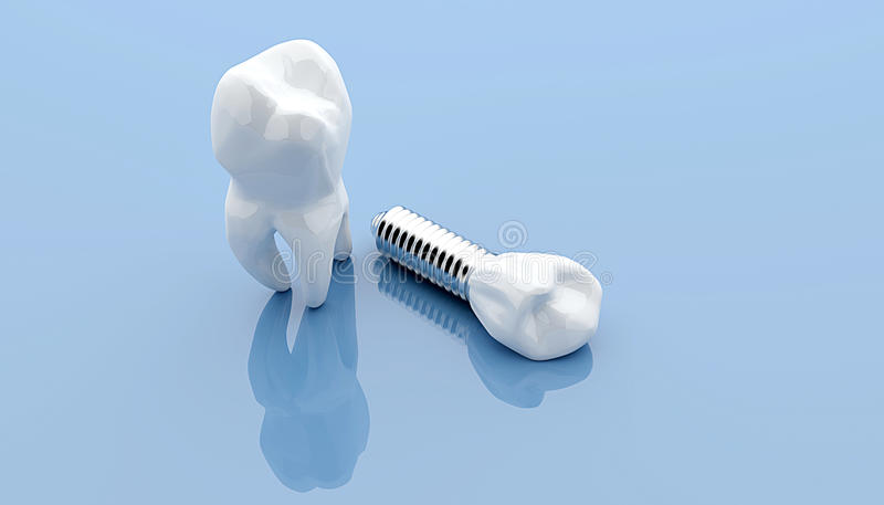 Dental implant and teeth royalty free illustration