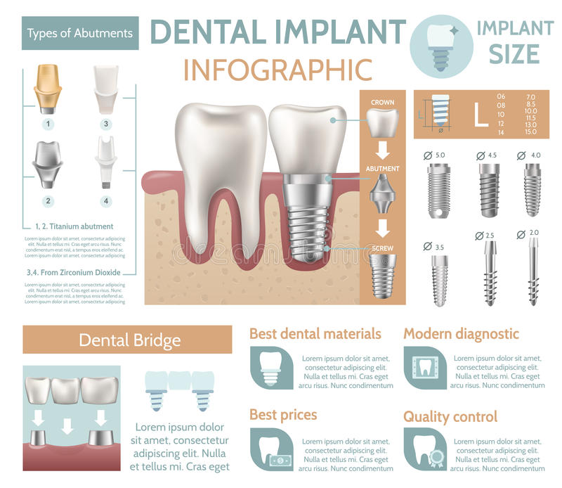 Dental implant tooth care medical center dentist clinic website infographic poster vector illustration royalty free illustration
