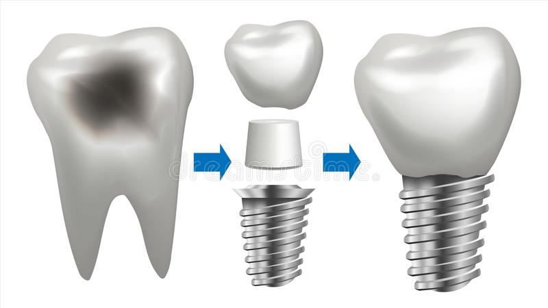 Dental Implant Vector. Tooth With Caries. Health Tooth Implant. Dental Clinic Stomatology Flyer. Realistic Isolated royalty free illustration