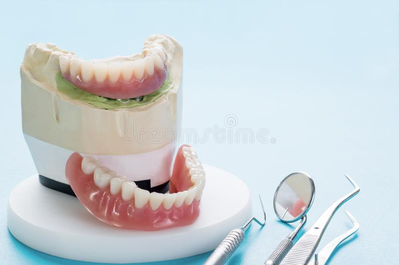 Dental implant work is completed and ready to use. stock images