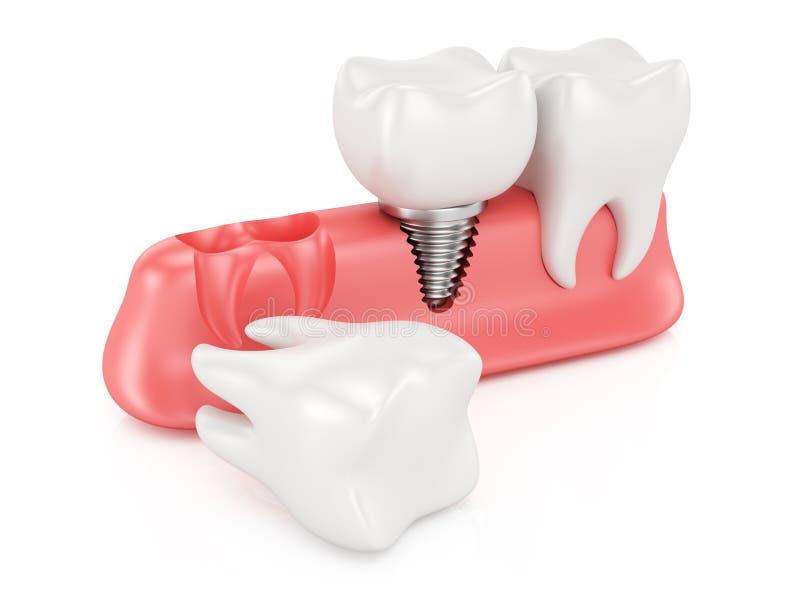 Dental implantation concept stock illustration