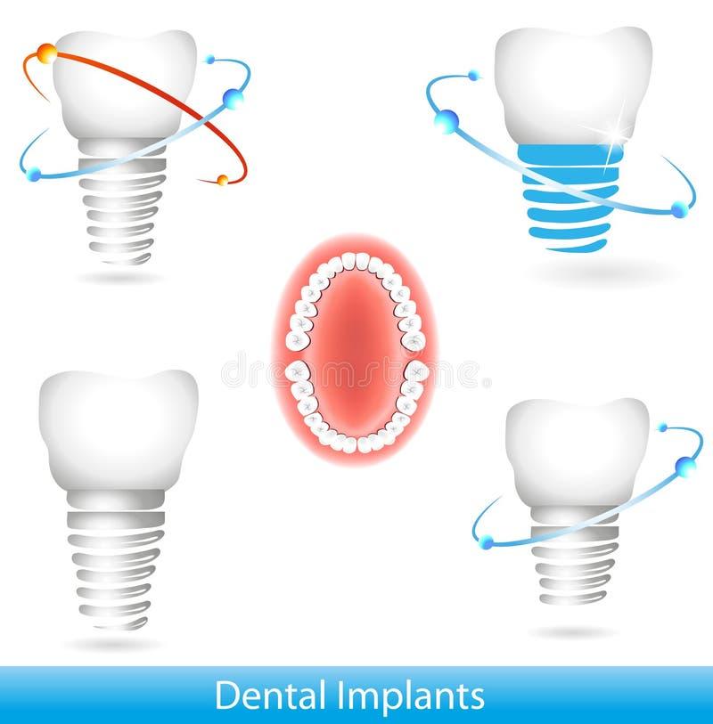 Download Dental implants stock vector. Illustration of biology - 22493494