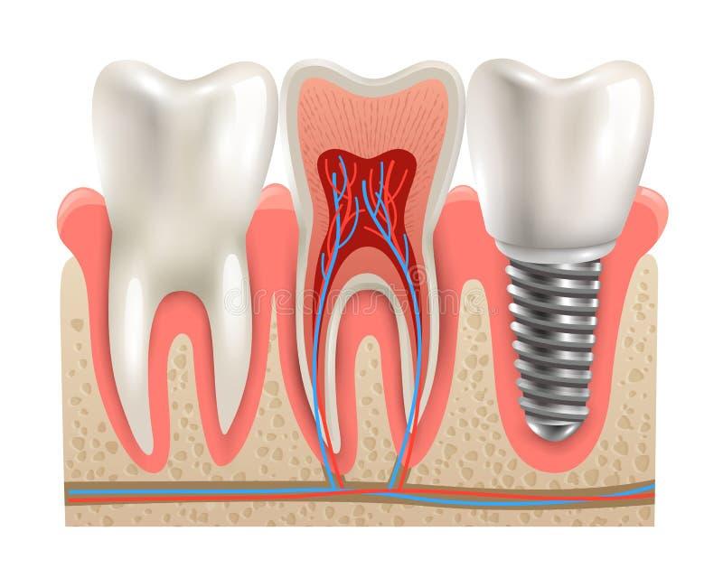 Dental Implants Anatomy Closeup Model Stock Vector - Illustration of ...