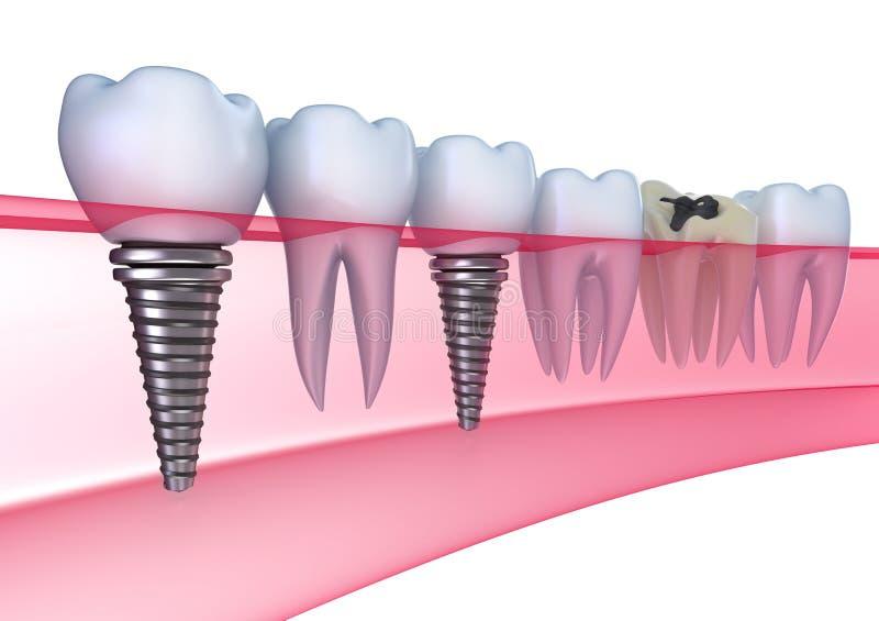 Dental implants in the gum royalty free illustration