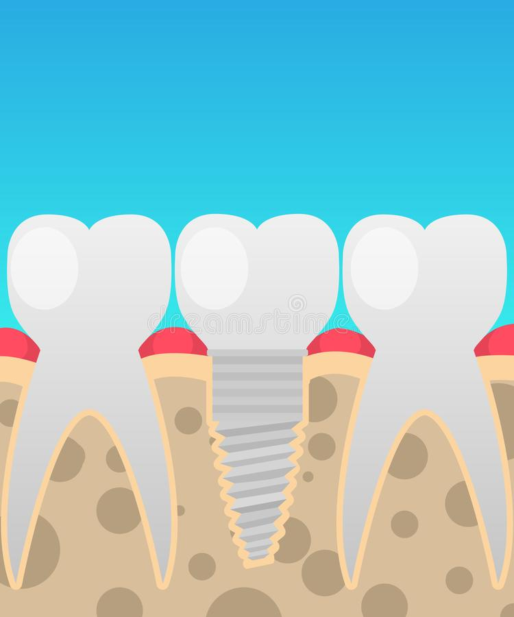 Dental implants, tooth replacement, vector illustration in a cartoon flat style. Insulated on the topic of dentistry for your projects royalty free illustration