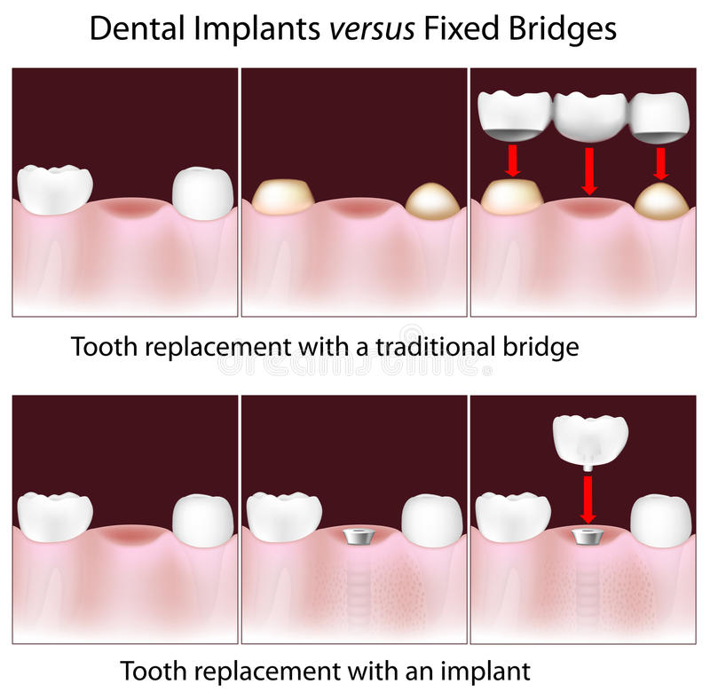 Dental implants versus fixed bridges royalty free illustration