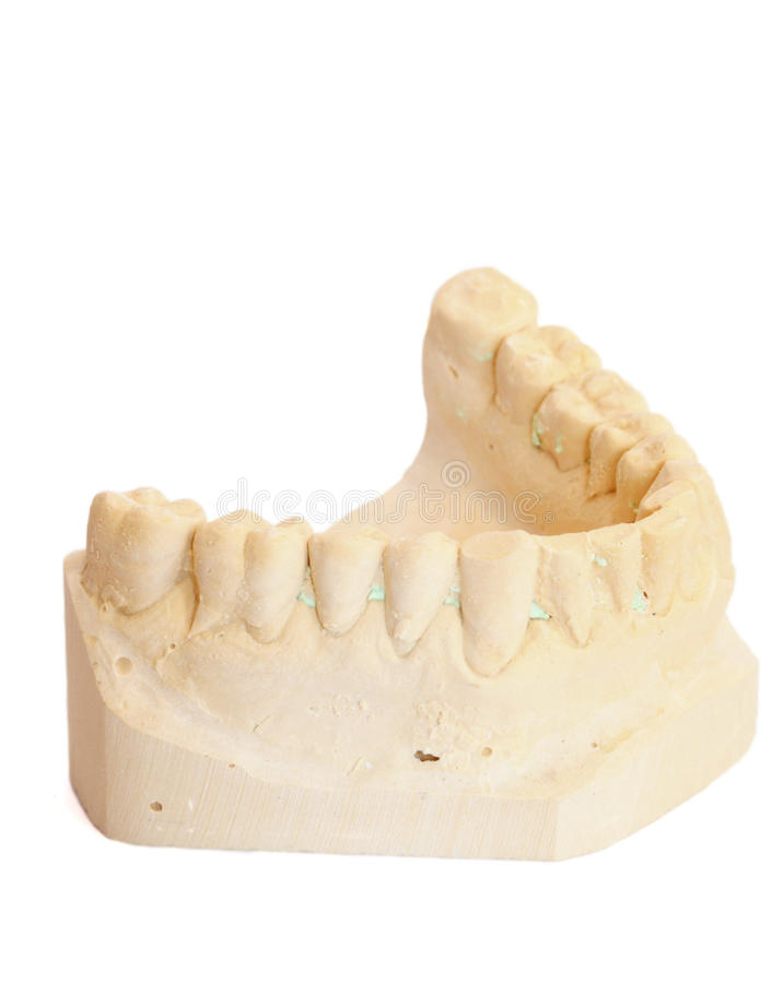 Dental Impression 3 Stock Photos