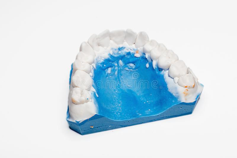 Download Dental impression stock photo. Image of mold, care, mouth - 101816836