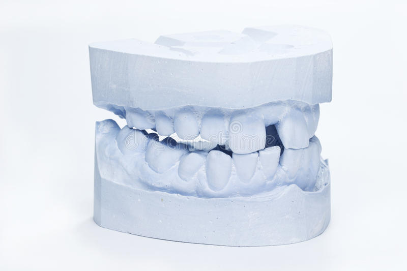 Download Dental impressions stock photo. Image of health, oral - 23969592