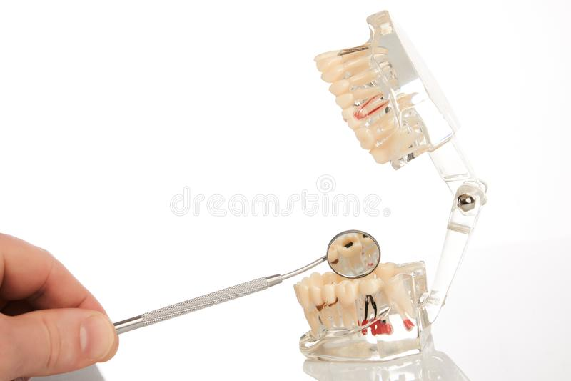 Dental jaw model and mirror. Dental jaw model with teeth, roots, gums, gum disease, tooth decay and plaque over white background, close-up. Dentistry treatment stock images
