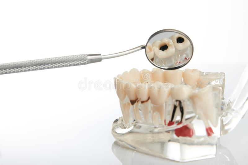 Dental jaw model and mirror. Dental jaw model with teeth, roots, gums, gum disease, tooth decay and plaque over white background, close-up. Dentistry treatment stock image