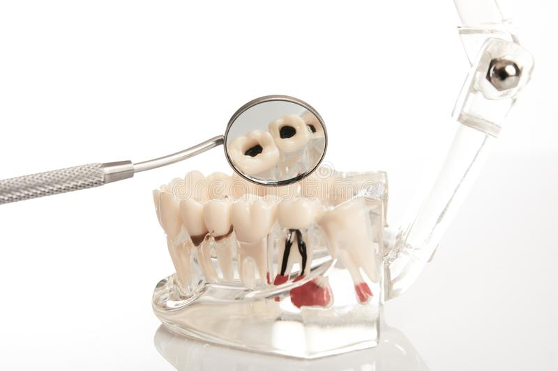 Dental jaw model and mirror. Dental jaw model with teeth, roots, gums, gum disease, tooth decay and plaque over white background, close-up. Dentistry treatment stock photo