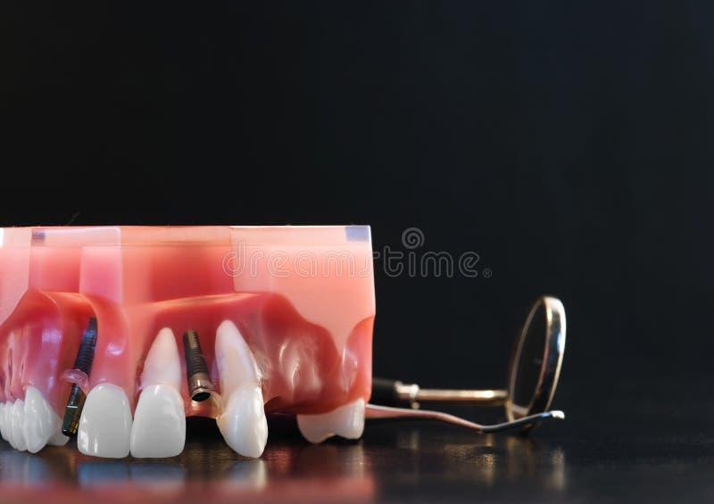 Dental model. Teeth implants model and dental instruments royalty free stock photo