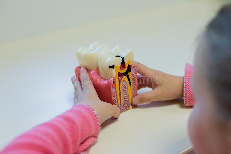 Dental model, caries. Small girl holding a bad tooth toy, plastic medical model of tooth. teeth problems, teeth pain. Dental model, caries. plastic medical model stock photo
