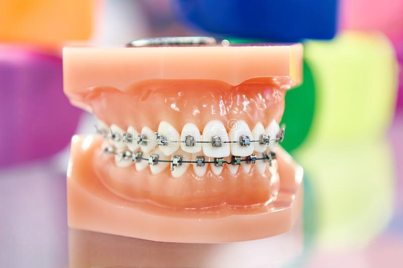 Dental model of the human jaw with braces. Dental model of the human jaw with teeth and braces stock photos