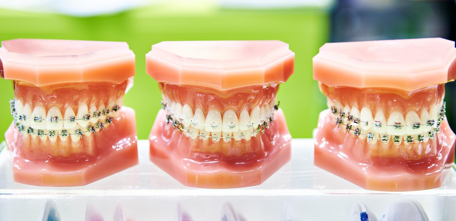 Dental model of the human jaws with braces royalty free stock photo