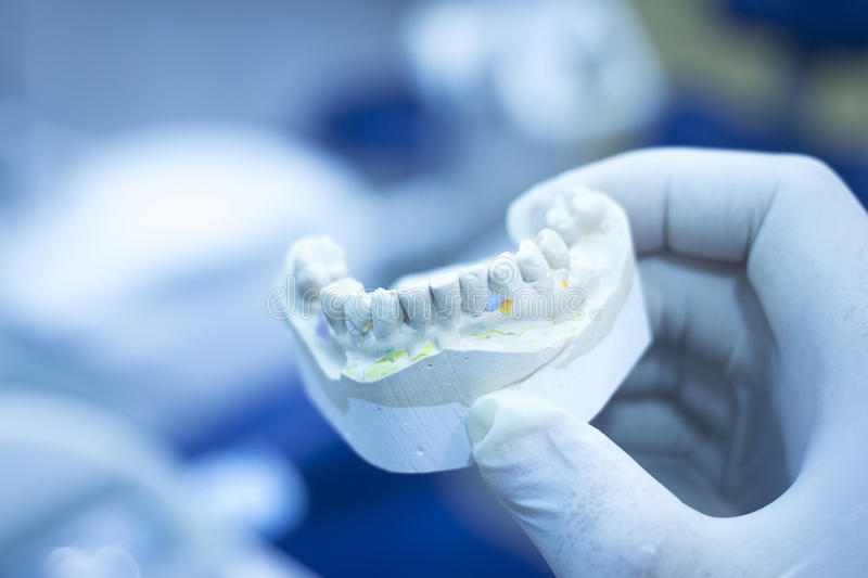 Dental mold dentist clay teeth ceramic plate model cast royalty free stock photo