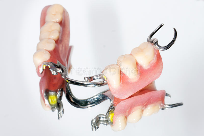 Dental partial prosthesis. Lower dental prosthesis and its reflection image royalty free stock images