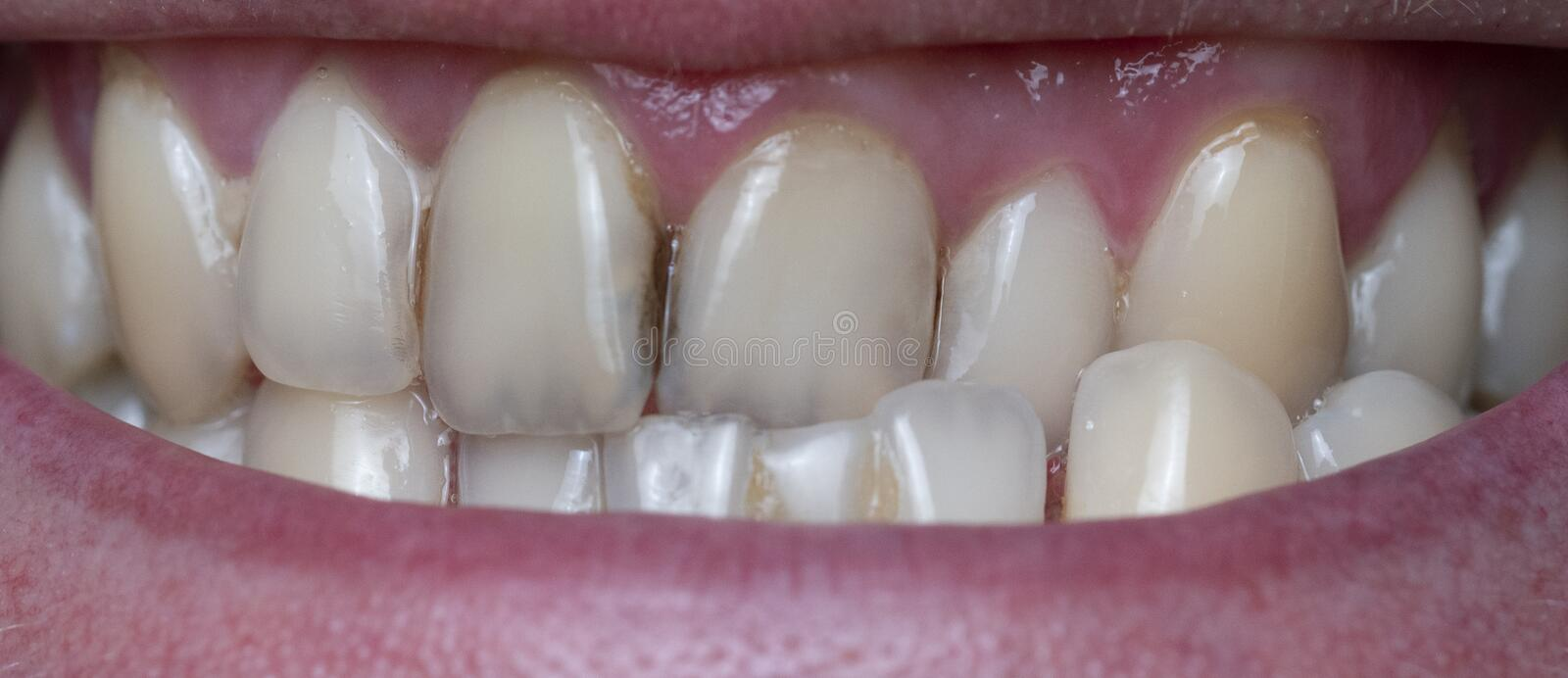 Dental plaque on man`s teeth caused by coffee residual. Closeup of dental plaque on man`s teeth caused by coffee residual royalty free stock image