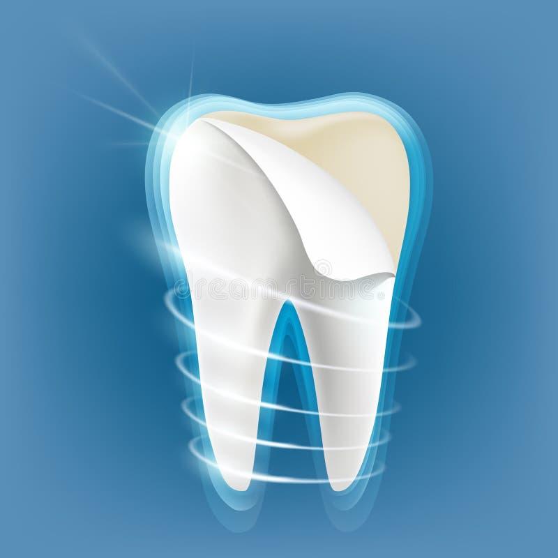 Dental porcelain veneers royalty free illustration