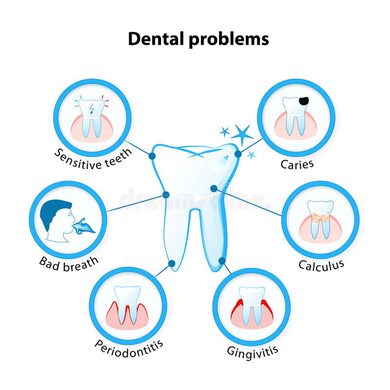 Dental problem. Tooth disease: sensitive teeth, caries, calculus, gingivitis, periodontitis and bad breath royalty free illustration
