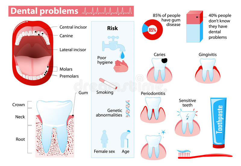 Dental problems. And dental disease. Medical infographic. Set elements and symbols for design royalty free illustration
