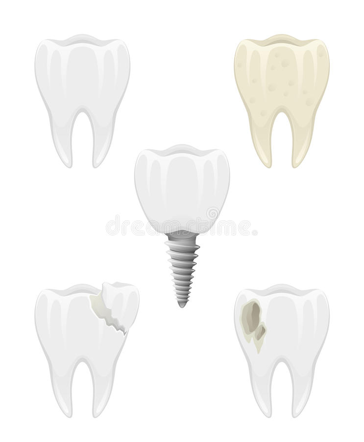 Dental problems. On a white background royalty free illustration