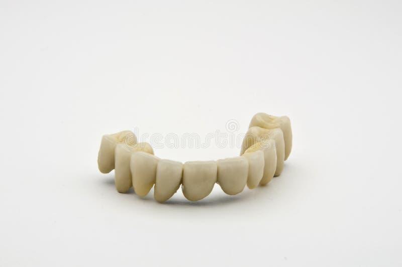 Dental prosthesis. On white background stock photography