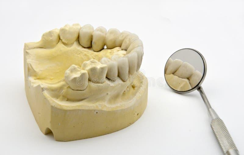 Dental prosthesis. On the chalk model stock images