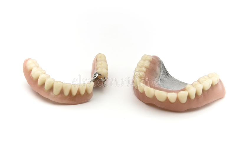 Dental prosthesis. Dental removable prosthesis on white background stock photo