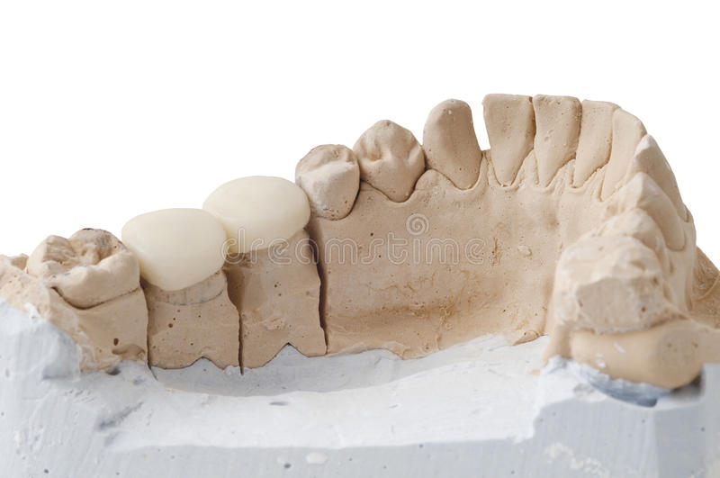 Dental Prosthesis. Photo of a dental sample, with dental prosthesis on it royalty free stock image
